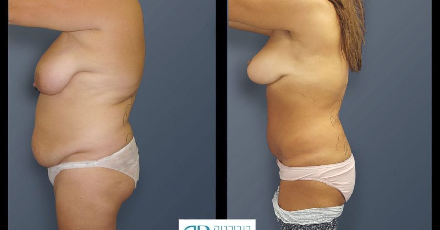breast-mpx-and-abdomino-and-lipofilling--4C