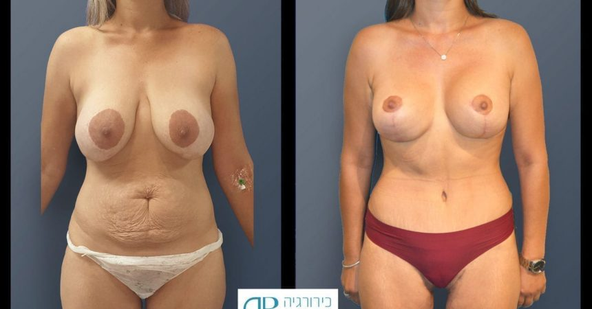breast-pexy-abdominoplsty-and-thighs-lift-1A