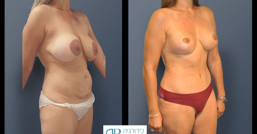 breast-pexy-abdominoplsty-and-thighs-lift-1B