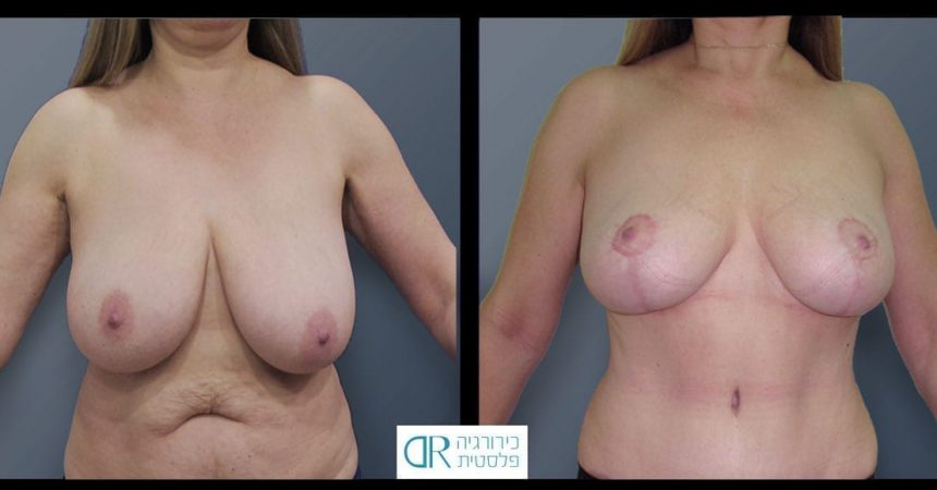 breast-reduction-14A