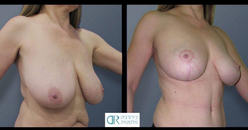 breast-reduction-14B