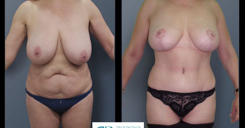 breast-reduction-and-abdomen-3A