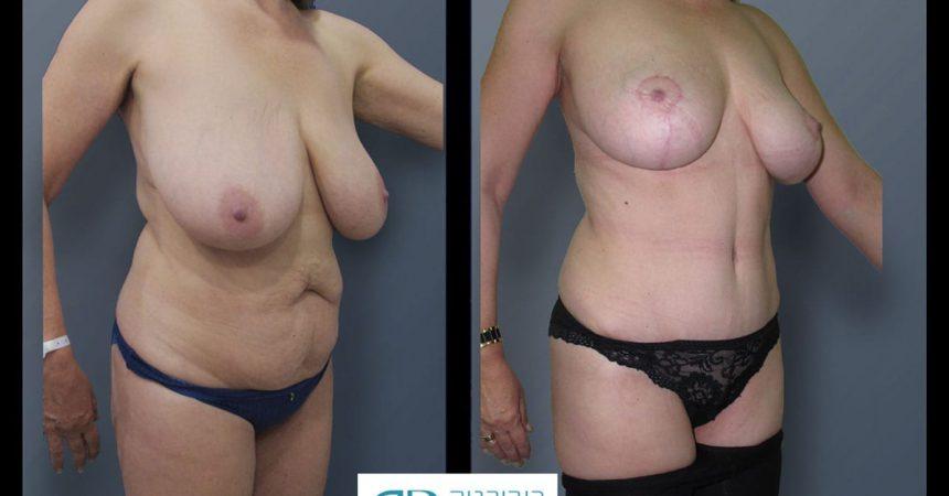 breast-reduction-and-abdomen-3B