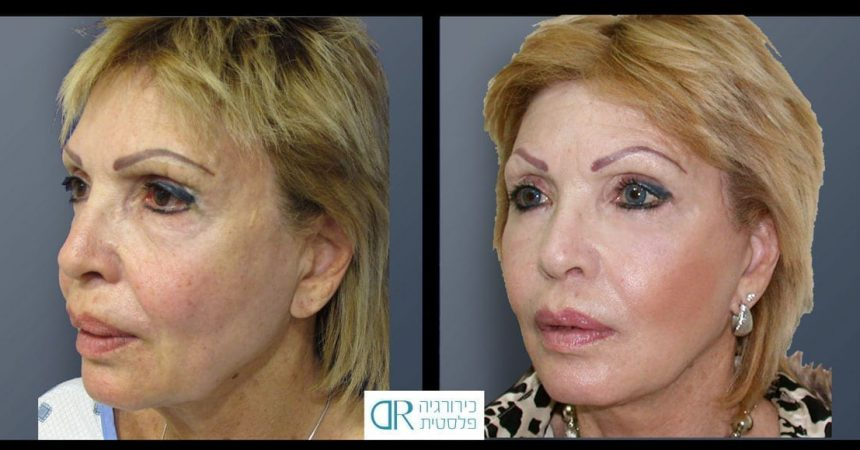 face-lift-and-chemical-peeling-1B