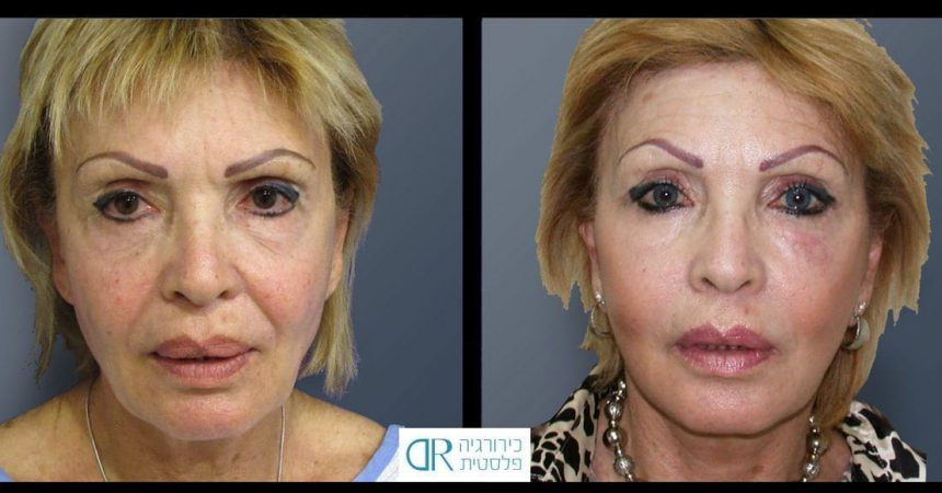 face-lift-and-chemical-peeling