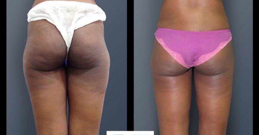 liposuction-and-lipofilling-A1