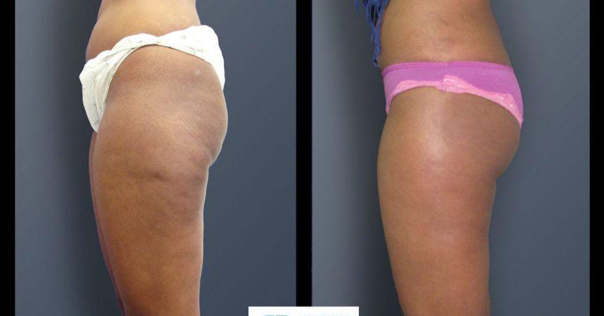 liposuction-and-lipofilling A2