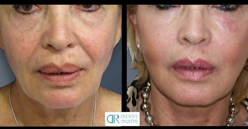 lips-granulomas-5A