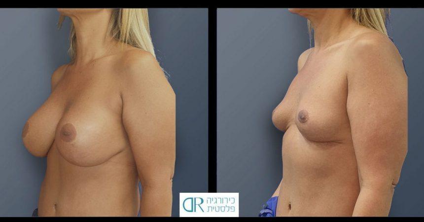 removal-implant-380-rt-460-lt--mastopxy-B