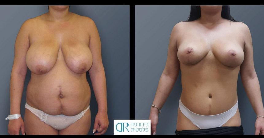 abdominal-reconstruction-and-mastopexy-A1