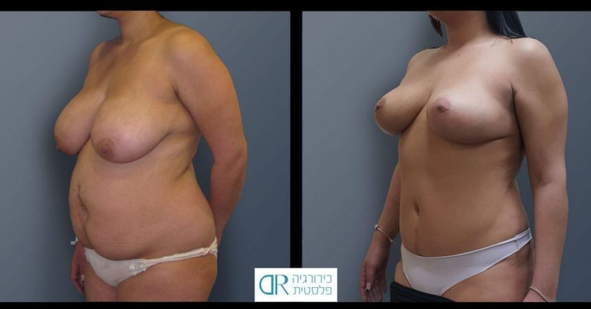abdominal-reconstruction-and-mastopexy-A2
