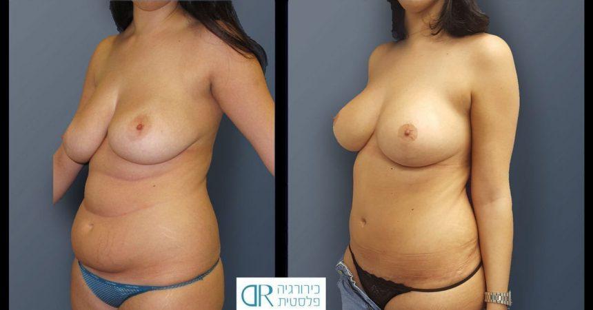 breast-pexy-abdominoplsty-2B