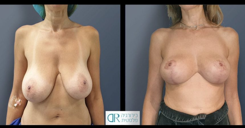 reduction-short-vertical-scar-A2