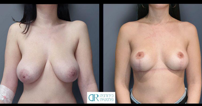 reduction-short-vertical-scar-A20