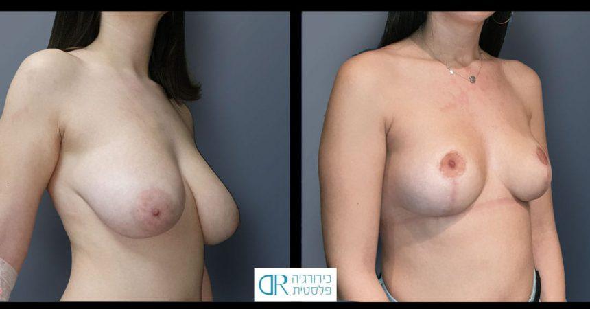 reduction-short-vertical-scar-A21