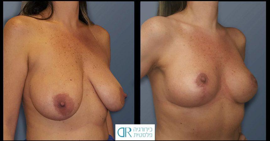 reduction-short-vertical-scar-B2