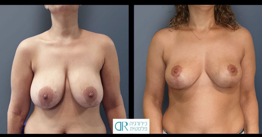 removal-breast-implants-11A-re-mastopexy