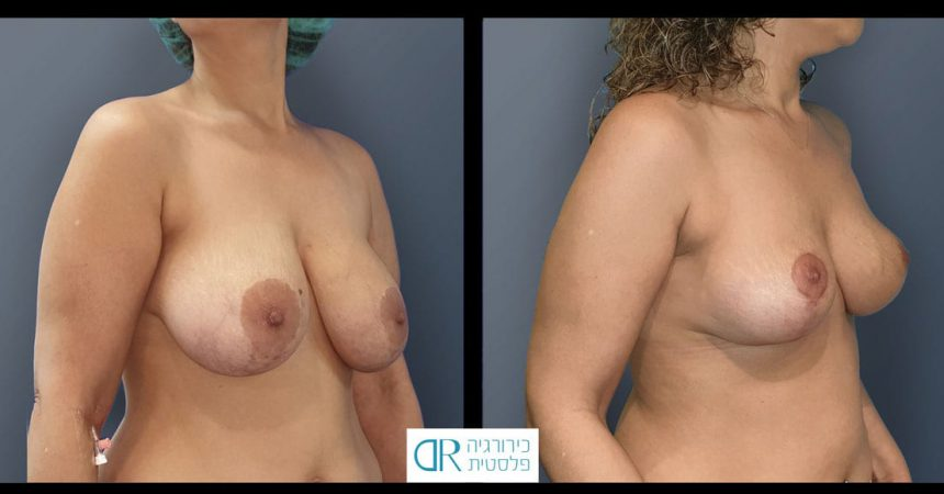 removal-breast-implants-11B-re-mastopexy