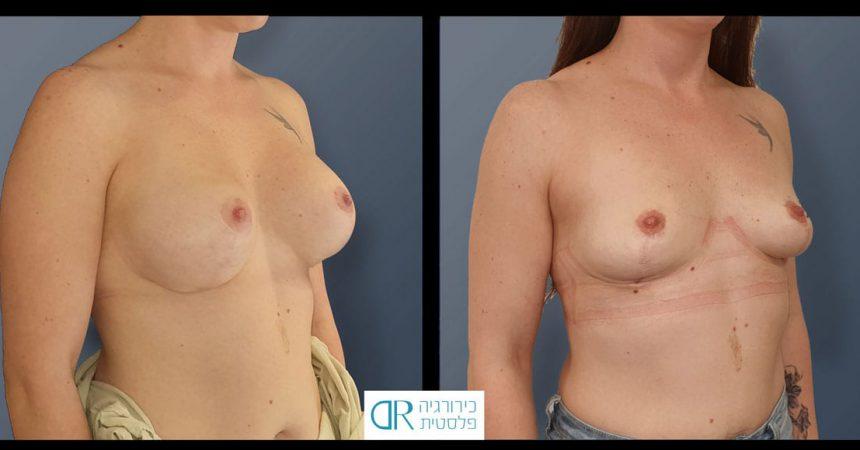 removal-implant-330cc-mastopxy-C3