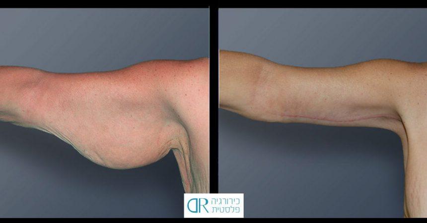 liposuction-arms-2A