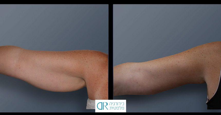 liposuction-arms-3A