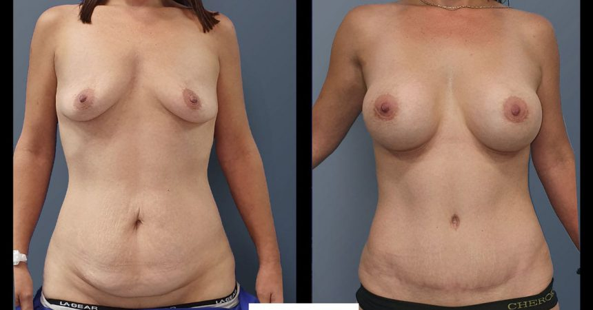 breast-aug-abdominoplsty-10A