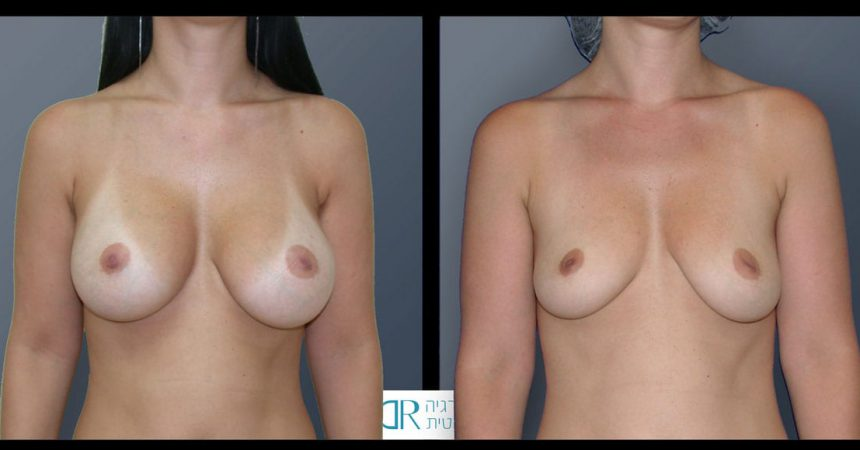 removal-breast-implants-20A
