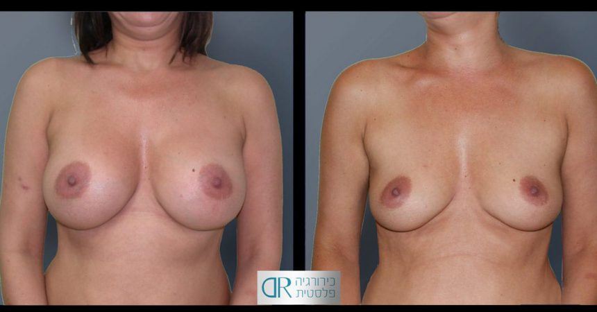 removal-breast-implants-21A