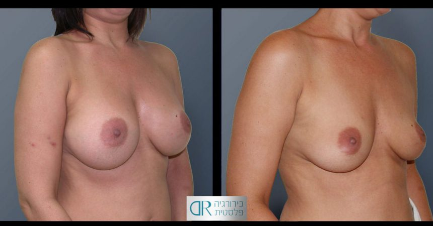 removal-breast-implants-21B