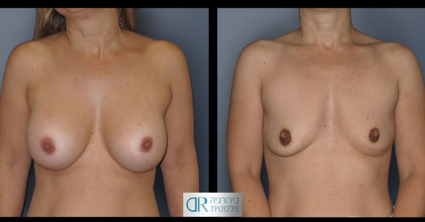 removal-breast-implants-22A