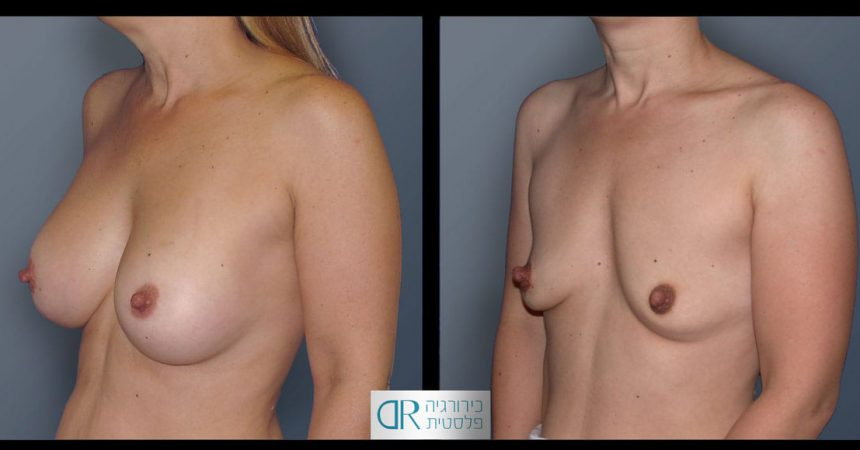 removal-breast-implants-22B