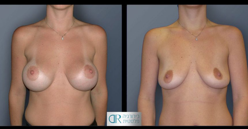 removal-breast-implants-23A