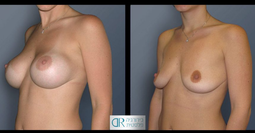 removal-breast-implants-23B