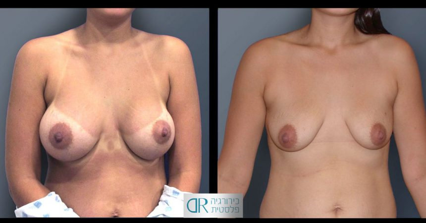 removal-breast-implants-24A