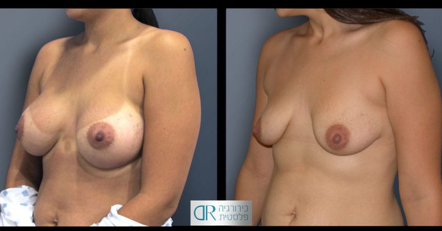 removal-breast-implants-24B