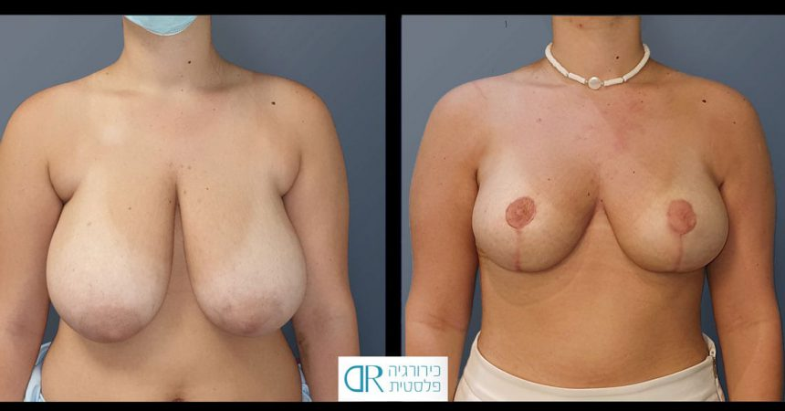 accessory-breast-&redudction-A1