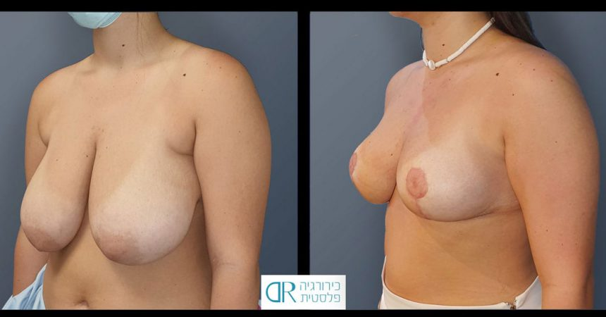 accessory-breast-&redudction-A3