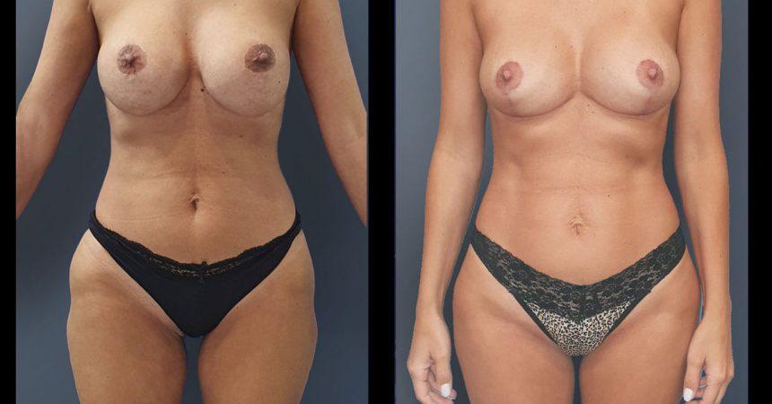 breast-pexy-liposuction2