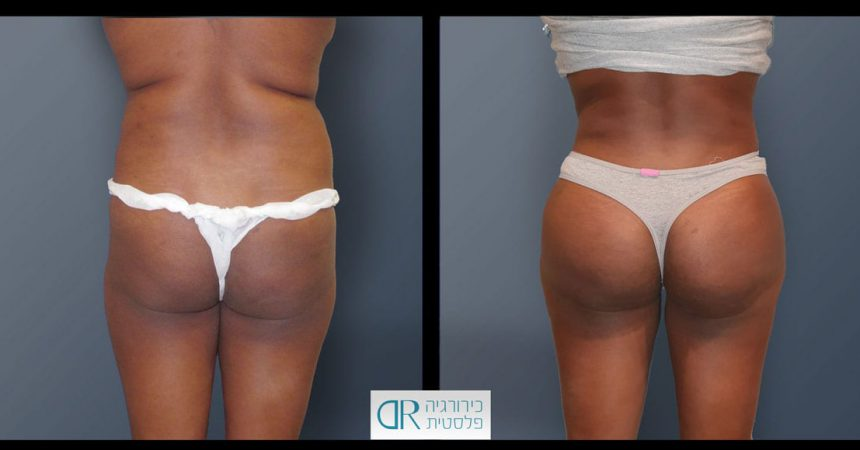 buttock-lipo-injection-1A