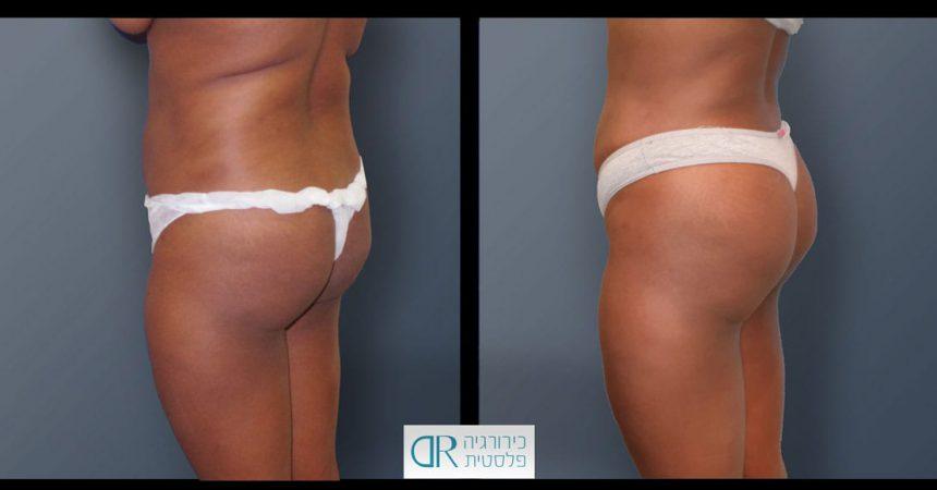 buttock-lipo-injection-1B