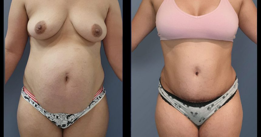 POVH-repair-and-abdominoplasty1A