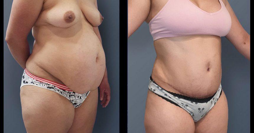 POVH-repair-and-abdominoplasty1B