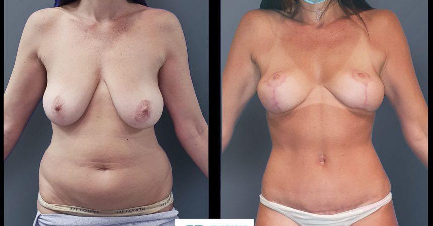 breast-pexy-abdominoplsty-5A