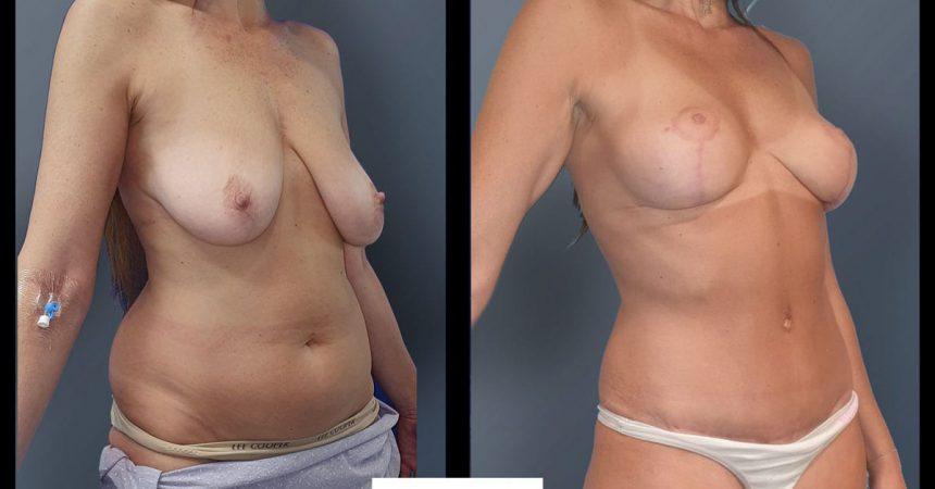 breast-pexy-abdominoplsty-5B