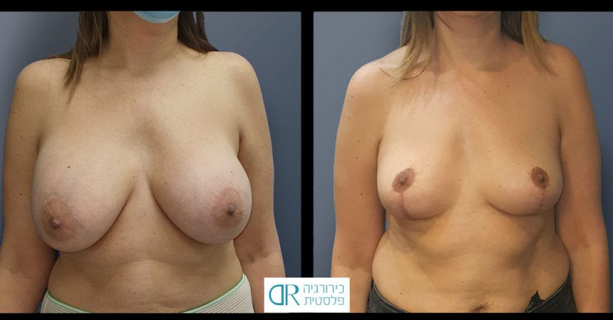 removal-breast-implants-30A