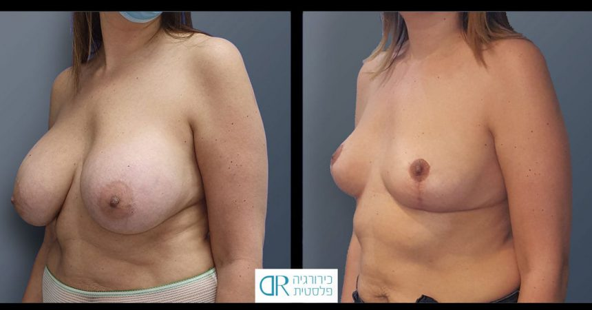 removal-breast-implants-30B