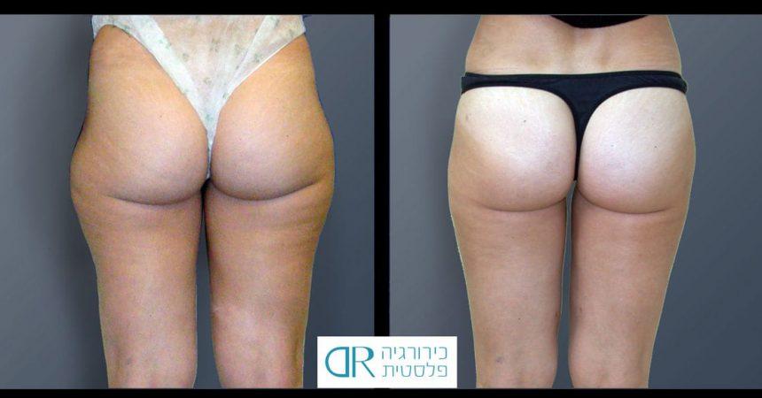 liposuction-and-lipofillingA4