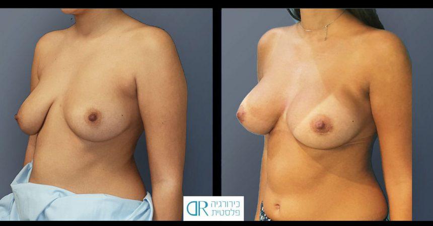 breast-asymmetry-10B