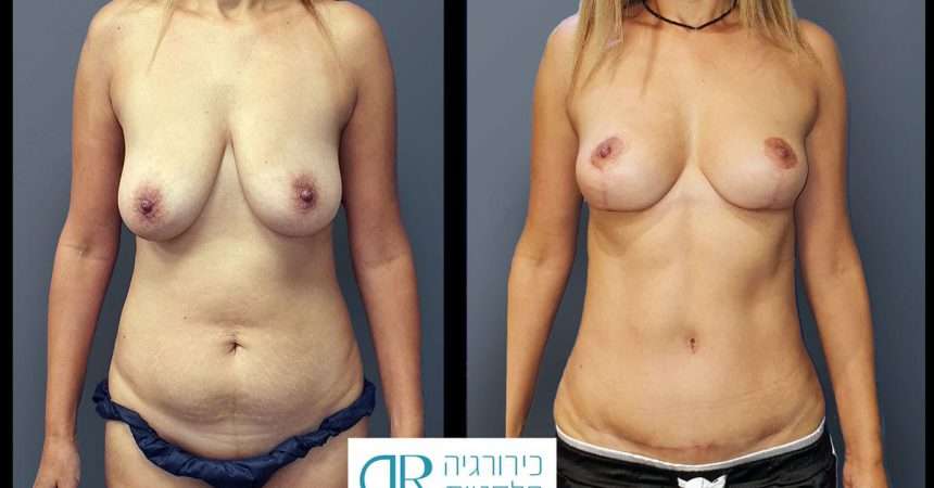 breast-pexy-abdominoplsty-10A