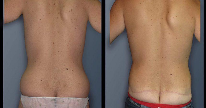 gyneco gr 4 body (1)